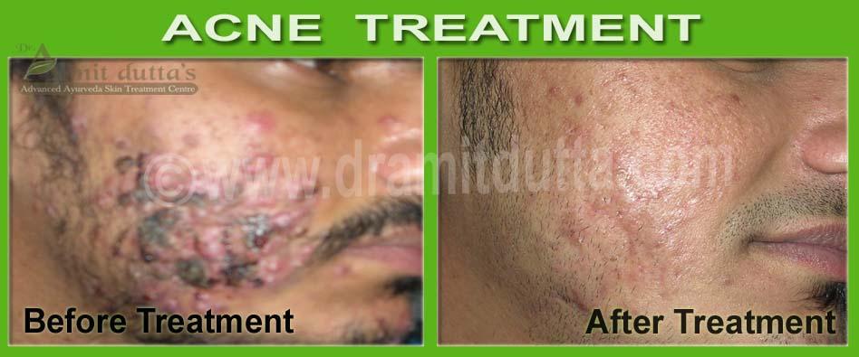 Acne-Vulgaris-ayurvedic-skin-treatment